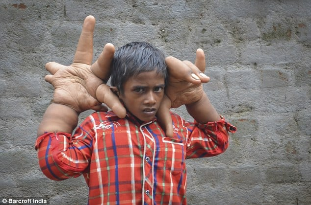 The boy with the TWO STONE hands that are bigger than his head: Indian doctors baffled after eight-year-old's fingers swell to giant proportions