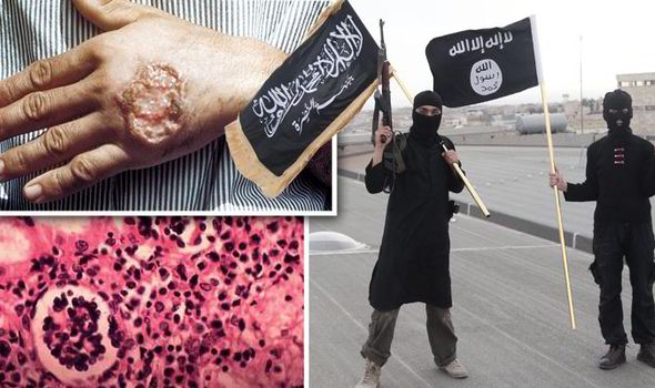 God Is Sending A Disgusting Flesh Eating Plague On ISIS (Thousands Infected And Spreading Quickly)