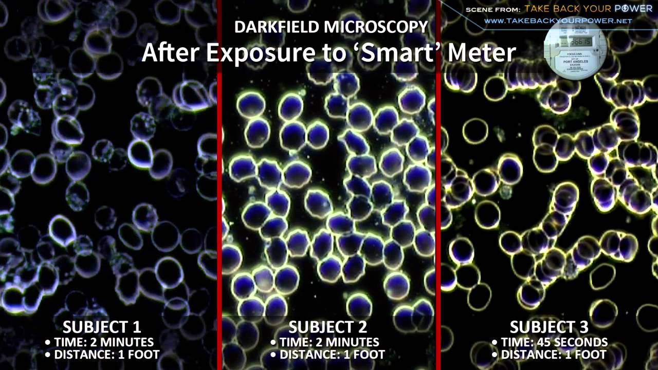 Blood Samples Before and After Exposure to Smart Meter